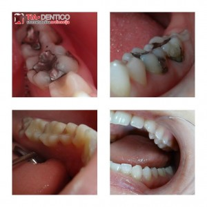 kompozitni ispun, tia dentico, stomatolog, beograd`
