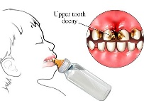 mlecni zubi, kod dece, tia dentico, 03
